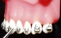 Braces on teeth being adjusted