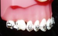 Model mouth of broken brace