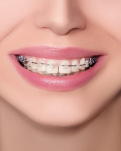Closeup Ceramic and Metal Braces on Teeth. Beautiful Female Smile with Brackets. Orthodontic Treatment. Front View.