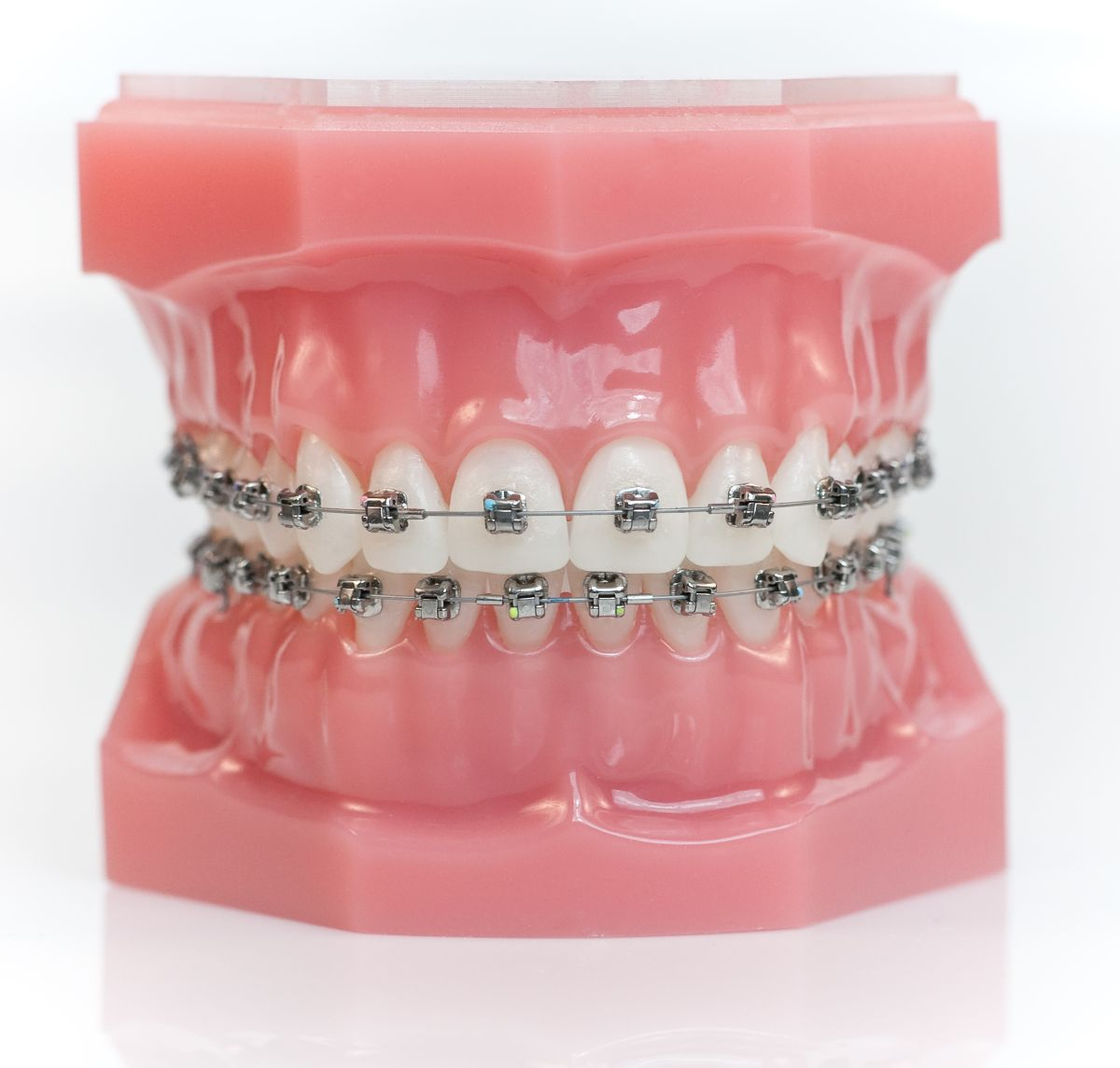 The Benefits of Damon Clear and Metal Braces